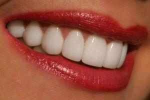 Белоснежная улыбка: как добиться?