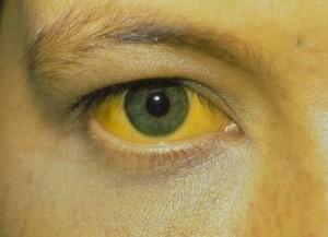 Хронический вирусный гепатит В: диагностика, лечение