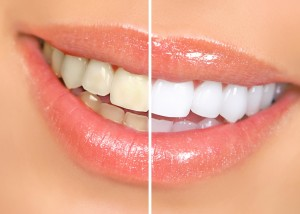 Лечение зубов в клинике Киадент Одесса