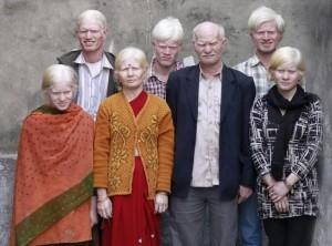 Самая большая в мире семья альбиносов